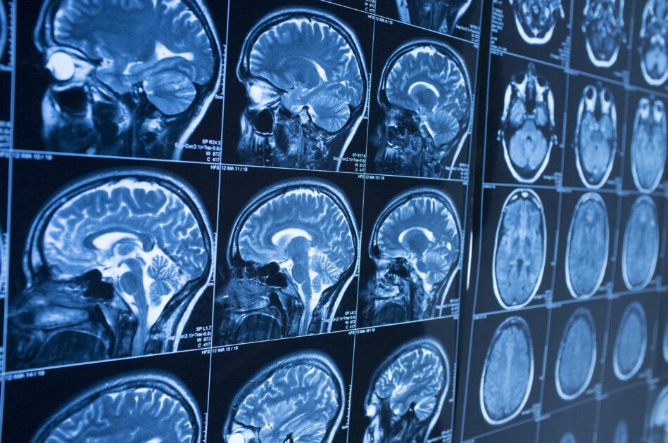 脳ドック 検査内容