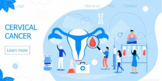 子宮頸がん 痛い 画像